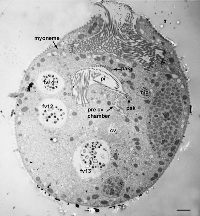 Fig  1h  micronucleus and contractile vacuole   s opening to peristomeContractile Vacuole In A Cell