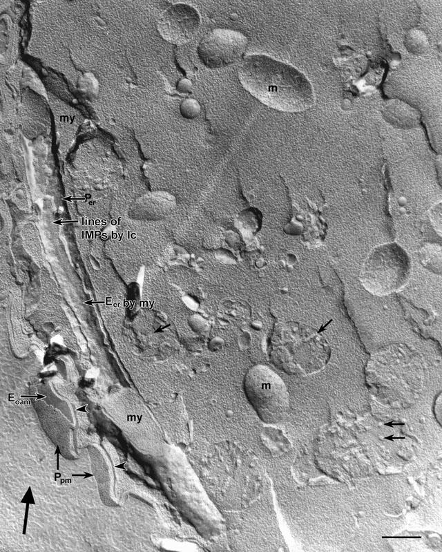 Vorticella microstoma